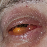 After influenza and Prevnar 23 vaccinations were given, a systemic immune reaction occurred affecting multiple body parts. image