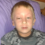 Daniel, age 7, has had issues with his skin like eczema and allergies so bad and treatments do not help. We've tried all that we've learned. image