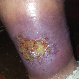 For 5 1/2 years I have been living with a flesh eating wound on my right ankle. I was bit by a spider. Non stop pain. image
