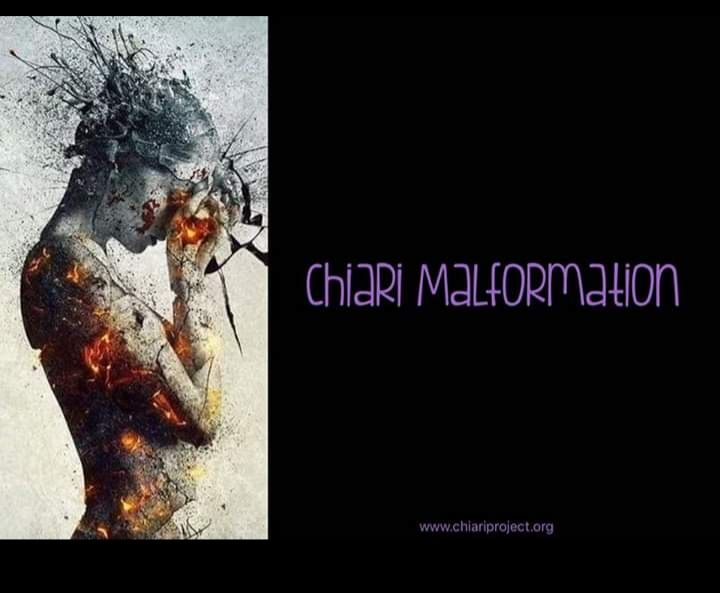 I have been diagnosed with Chiari Malformation. Symptoms include neck, shoulder, back pain,  constant head aches, numbness and more... image