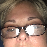 I have been suffering for years and no one can help me I am allergic to every antibiotic and all multiple sclerosis medicines  image