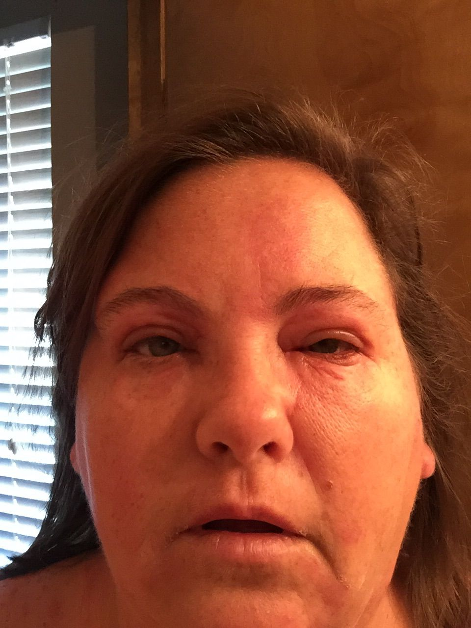 My wife has chronic idiopathic urticaria/hives. 8 months, very itchy & painful, lately been daily & all over, including angiodema/swelling image